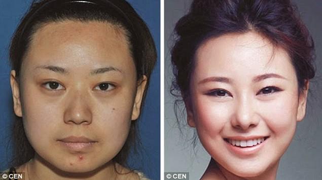Koreans that underwent Plastic Surgeries 18