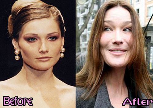 Carla-Bruni-Before-and-After-Photos
